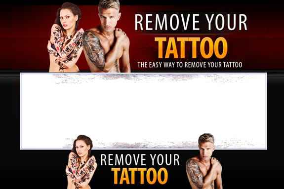 Tattoo Removal Template